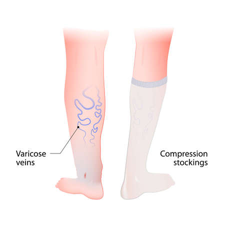compression: compression stockings for varicose veins. compression hosiery