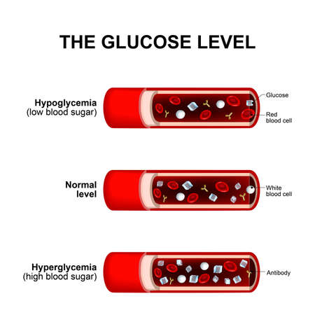 white sugar: blood sugar level or glucose level. Normal level, Hyperglycemia and Hypoglycemia. blood vessels with crystals of sugar (glucose ), white and red blood cells Illustration