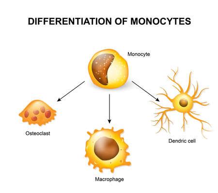 단핵 세포의 분화. 파골 세포, 대 식세포 및 Dendric 셀 일러스트