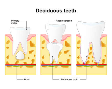 eruption: primary tooth and permanent tooth. illustration shows permanent tooth located below the deciduous tooth prior to exfoliation. Tooth Eruption. Baby teeth are lost due to the pressure of the permanent teeth erupting from below.