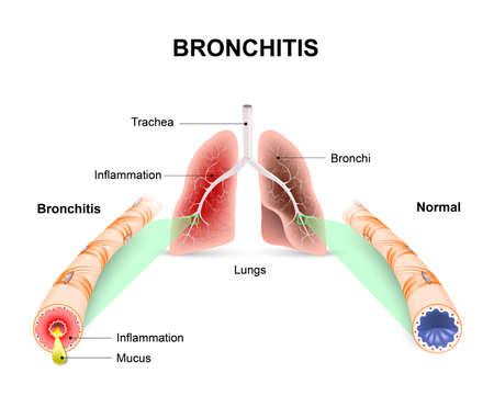 bronchitis: Bronchitis. Lungs and bronchial tubes. normal bronchial tube and a bronchial tube with bronchitis.