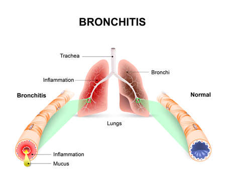 Bronchitis. Lungs and bronchial tubes. normal bronchial tube and a bronchial tube with bronchitis.