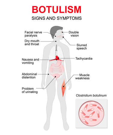 Botulism is a fatal illness caused by a toxin, produced by the bacterium. Signs and symptoms. Human silhouette with highlighted internal organs.