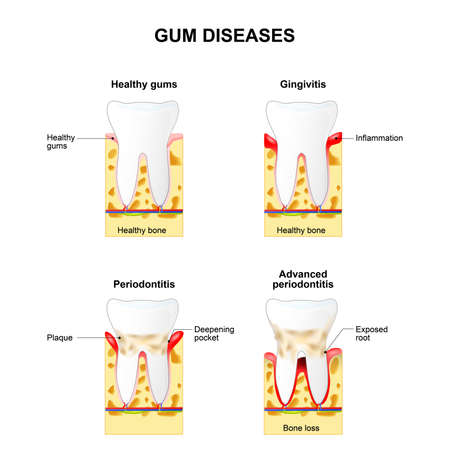 Gum disease: Gingivitis and Periodontitis. Gingivitis - the gums are swollen, bone is healthy. Periodontitis - the gums are swollen and the bone is also inflamed. 일러스트