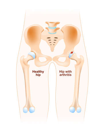 osteoarthritis: Healthy hip and hip with osteoarthritis. Arthritis or pain within a joint. degenerative joint disease. Cartilage becomes worn. This results in inflammation, swelling, and pain in the joint.