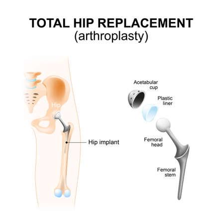Totale heupprothese of artroplastiek en hip Implant Stock Illustratie