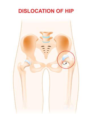 luxacion: Dislocación de la cadera. Una dislocación de cadera ocurre cuando la cabeza del hueso del muslo es forzado a salir de su cavidad en el hueso de la pelvis.
