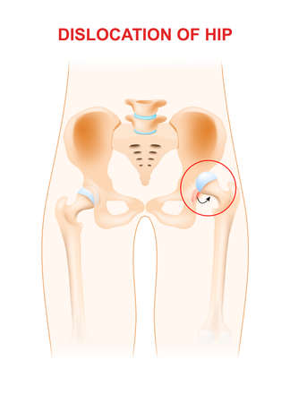 thigh: Dislocation of hip. A hip dislocation takes place when the head of the thigh bone is forced out of its socket in the pelvic bone.