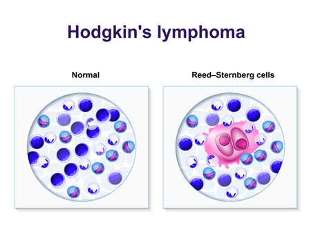 neoplasia: Hodgkins lymphoma. biopsy healthy human cells and lymphoma patient. Reed-Sternberg and other white blood cell. Illustration showing a classic Reed-Berezovsky-Sternberg cell. Illustration