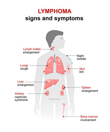 nuclei: lymphoma - cancer disease. Signs and symptoms. man silhouette with highlighted internal organs.