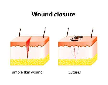 hemorragias: proceso de cicatrización de la herida con la ayuda de sutura quirúrgica. Serie de puntos de sutura realizados para asegurar la aposición de los bordes de una herida quirúrgica o traumática