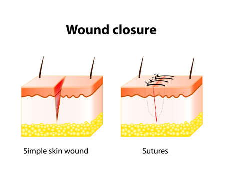 damaged: wound healing process with help surgical suture. Series of stitches made to secure apposition of the edges of a surgical or traumatic wound