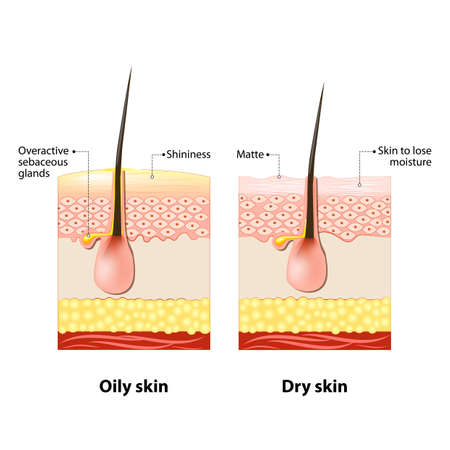 diagrammatic: Oily & dry skin. Different. Human Skin types and conditions. A diagrammatic sectional view of the skin. Illustration