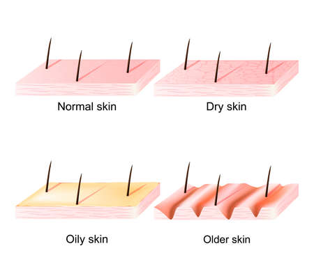 wrinkled face: Normal, dry and oily, younger and  older skin. Different. Human Skin types and conditions. sectional view. Illustration