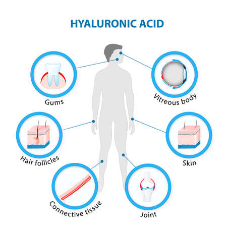 vitreous body: Hyaluronic Acid in the human Body. Illustration