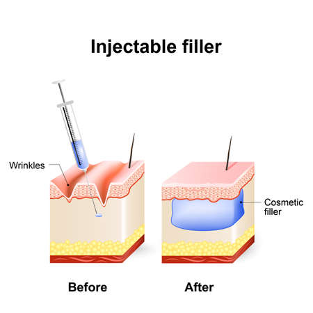 facial care: injectable cosmetic filler. How it works. Procedure. Before and after injection.
