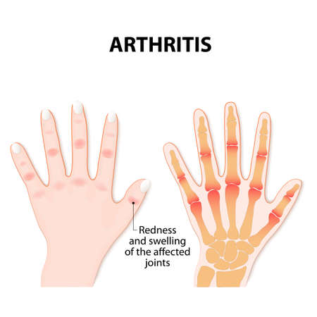 Hand with arthritis 向量圖像