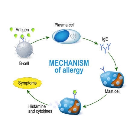 Mechanism of allergy. Mast cells and allergic reaction. B-cell is exposed to allergen, plasma cells will initiate an overproduction of IgE antibodies. The IgE molecules attach themselves to mast cells. When allergen enters the body for the second time, th