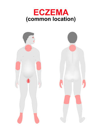 Eczema, dermatitis. Areas of the body most commonly affected. Women silhouette with highlighted location of the disease.