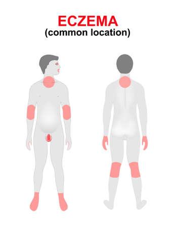 superficie: Eczema, dermatitis. Las áreas del cuerpo afectadas con mayor frecuencia. Silueta de las mujeres con la ubicación resaltada de la enfermedad. Vectores