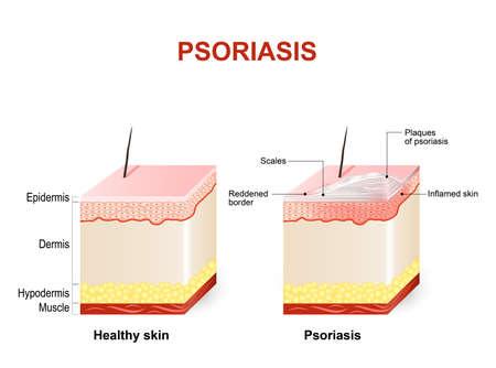 乾癬の症状。正常な皮膚や乾癬。尋常性乾癬