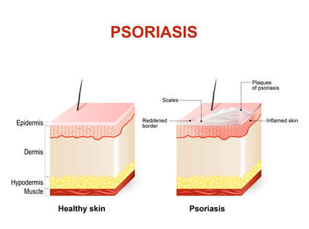 Symptoms of psoriasis. Normal skin and psoriasis. plaque psoriasis Illustration