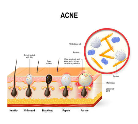 sebaceous gland: Acne vulgaris or pimple. The sebum and dead skin cells in the clogged pore promotes the growth of a certain bacteria. This leads to the redness and inflammation associated with pimples. skin disease