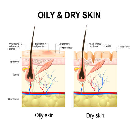 sebaceous: Oily & dry skin. Different. Human Skin types and conditions. A diagrammatic sectional view of the human skin on the white background. Vector Illustration Illustration