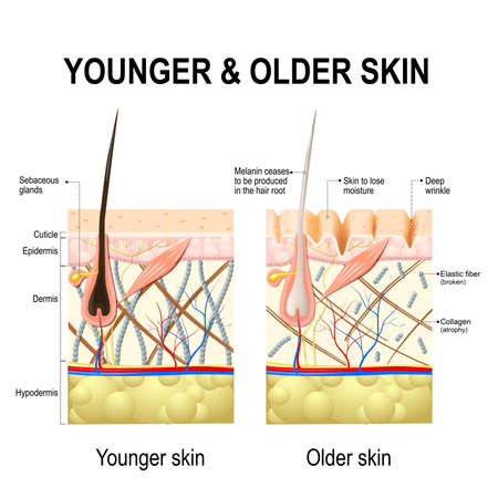 Human skin changes or ageing skin. A diagram of younger and older skin showing the decrease in collagen fibers, atrophy and broken elastin, formed wrinkles, hair becomes gray in the elderly.