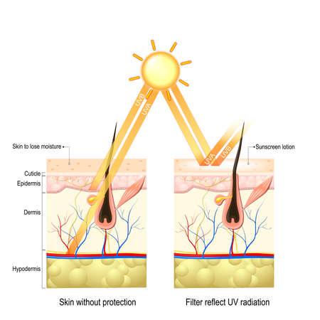 Proteger la piel humana contra los rayos UVA, UVB. sin crema protectora de los rayos penetran profundamente en la piel dañar las fibras de elastina y colágeno, la piel pierde humedad. La loción de protección solar protege la piel de las radiaciones nocivas. Foto de archivo - 70264534