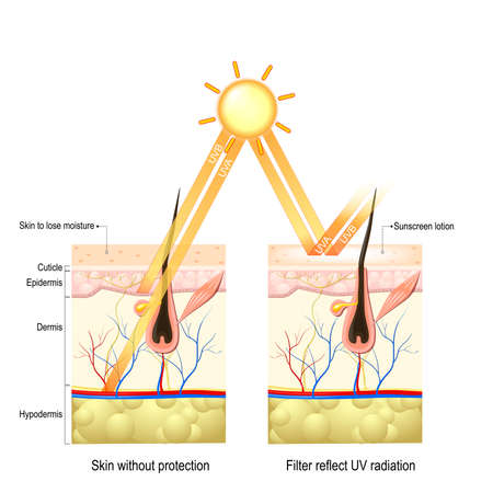UVA, UVB 광선으로부터 사람의 피부를 보호하십시오. 보호 크림 광선이 피부 깊숙이 스며 들어 엘라스틴과 콜라겐 섬유를 손상 시키면 피부가 수분을 잃어 버리게됩니다. 선 스크린 로션은 유해한 방사선으로부터 피부를 보호했습니다. 스톡 콘텐츠 - 70264534