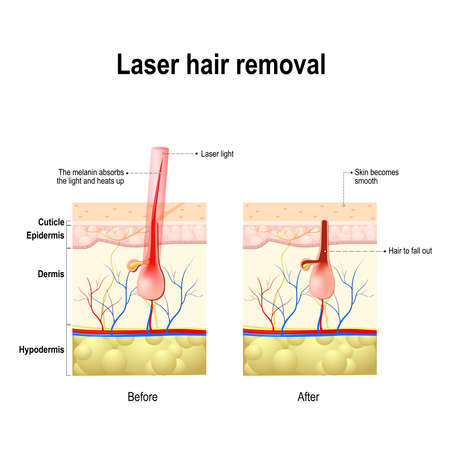 Laser Hair Removal. laser produce a beam of light that is absorbed by the pigment in hair. This causes damage to the hair follicle without hurting the skin tissue. Laser treatment.