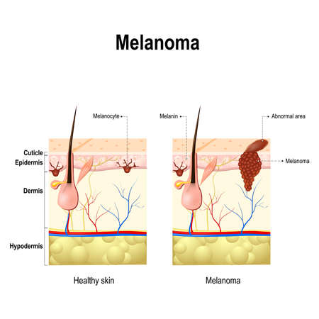 Melanoma or skin cancer. This rare type of skin cancer originates from melanocytes. layers of the human skin. Illustration