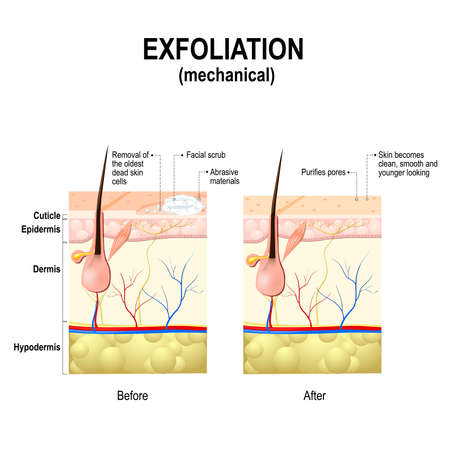 Exfoliation or Peeling is a cosmetic procedure (physically scrubbing) to remove impurities from the skin, unclog the pores and exfoliate dead skin cells. Cross-section of a skin layers. Stock Vector - 69363654