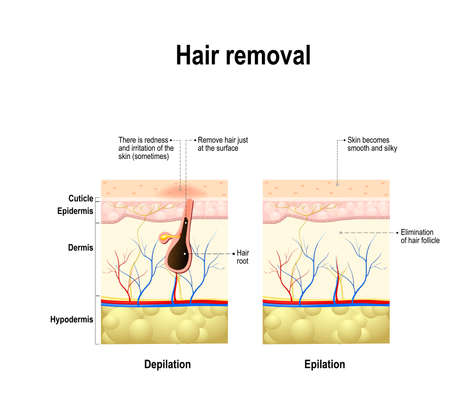epilation and depilation difference. Hair removal. human skin