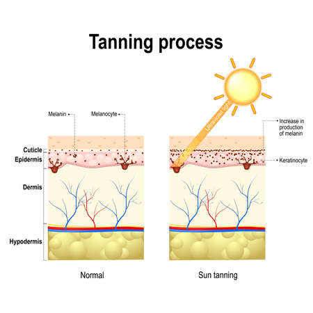 Tanning process. When ultraviolet light waves touch melanocytes, they begin to increase the production of melanin. The skin becomes dark color