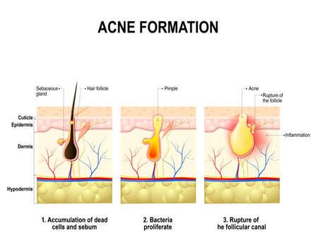 piel humana: Tres etapas de la formación del acné en la piel humana. El sebo en el poro obstruido promueve el crecimiento de una bacteria Propionibacterium acnes. Esto conduce a que el enrojecimiento y la inflamación, que asocia con las espinillas. Para clínicas y escuelas Vectores