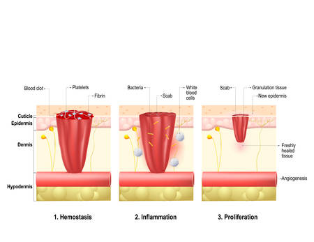Wound healing. process in body tissue repairs after trauma. Phases wound healing: hemostasis, inflammation and proliferation