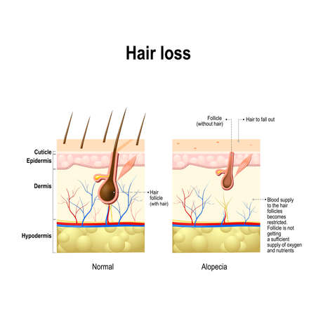 Hair loss. Normal hair and Alopecia areata in the human skin. alopecia or baldness. Vector illustration Vettoriali