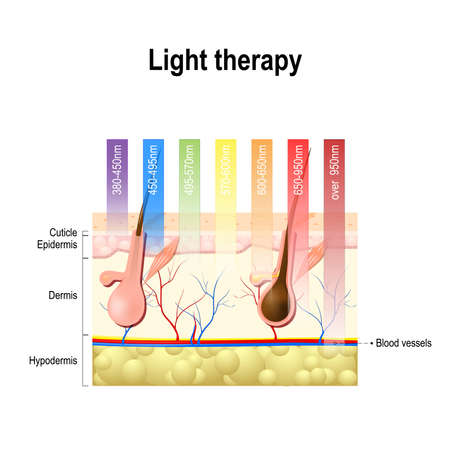 scarring: light therapy, Phototherapy or laser therapy. Electromagnetic spectrum with colors of the various wavelengths in the human skin. Different light spectrums would penetrate the skin to different depths. Depth of penetration by wave light Illustration