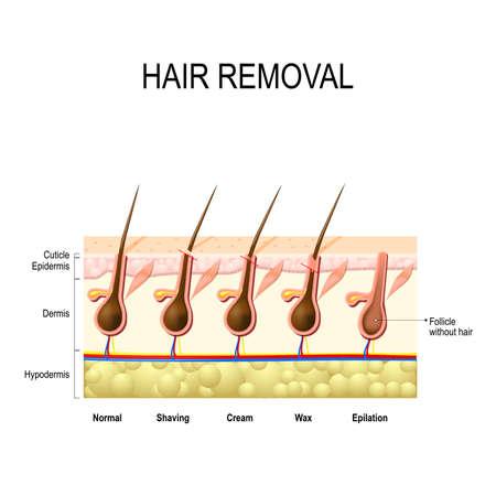 depilazione con cera, crema, epilazione e la rasatura. L'altezza della rimozione del fusto del capello. metodi diversi.