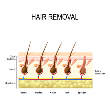 Hair removal with wax, cream, epilation and shaving. The height of the removal of the hair shaft. different methods.
