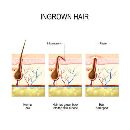 pelos encarnados después de la depilación y el afeitado. pelo enterrado. estructura del folículo piloso Ilustración de vector