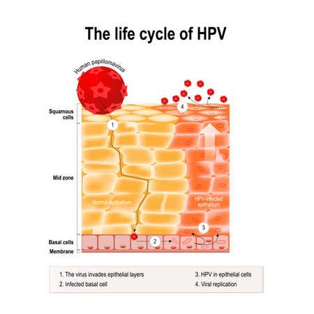cervicales: ciclo de vida del VPH en el epitelio humano. VPH - virus del papiloma humano que causa verrugas y cáncer cervical (carcinoma de cuello uterino) - Tumor maligno derivado de las células epiteliales infectadas