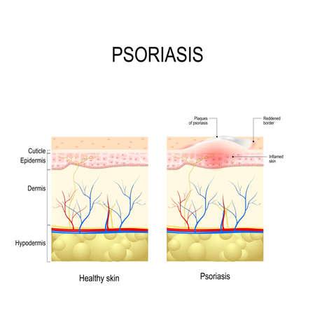 건선. 인간의 피부 레이어를 닫습니다. 건강한 피부와 피부의 플라크 건선 일러스트