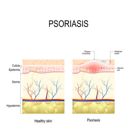 Psoriasis. Human Skin layer close up. Healthy skin and skin with the plaque psoriasis Stock Vector - 69931476