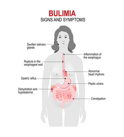 attempts: Bulimia is an eating disorder. binge eating and attempts to get rid of the food consumed. Signs and symptoms. woman silhouette with highlighted internal organs.