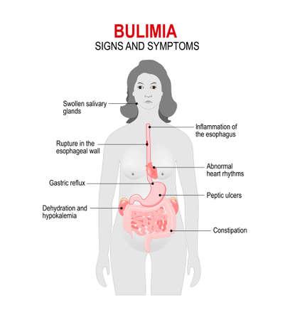 La bulimia è un disturbo alimentare. binge eating e tentativi di sbarazzarsi del cibo consumato. Segni e sintomi. silhouette donna con gli organi interni evidenziati. Archivio Fotografico - 71030037