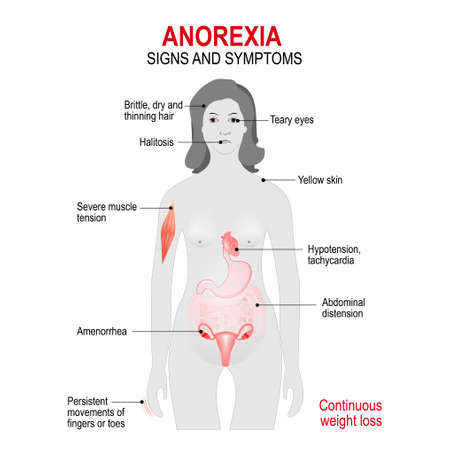 anorexia: Anorexia nervosa is an eating disorder.
