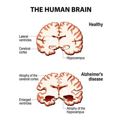 De menselijke hersenen. Dwarsdoorsnede. Gezond en hersenen met de ziekte van Alzheimer (dementie, seniliteit) Stock Illustratie